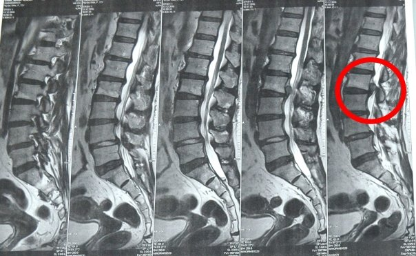 Cum tratam hernia de disc fara operatie? | Move&Flex